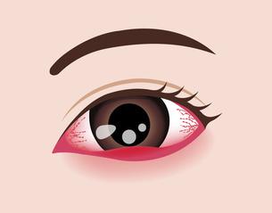 目・眼の病気 イラスト (ものもらい)のイラスト素材 [FYI04954327]