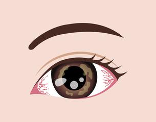 目・眼の病気 イラスト (角膜ヘルペス)のイラスト素材 [FYI04954328]