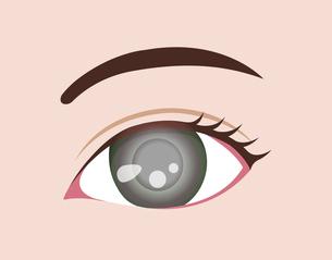 目・眼の病気 ベクターイラスト (緑内障)のイラスト素材 [FYI04954329]