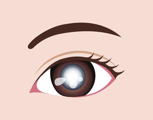 目・眼の病気 ベクターイラスト (白内障)のイラスト素材 [FYI04954330]